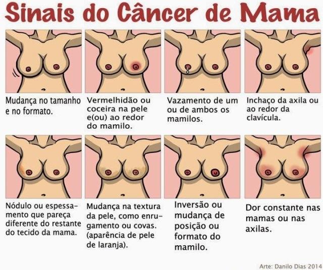 Sinais_do_c_necer_de_mama